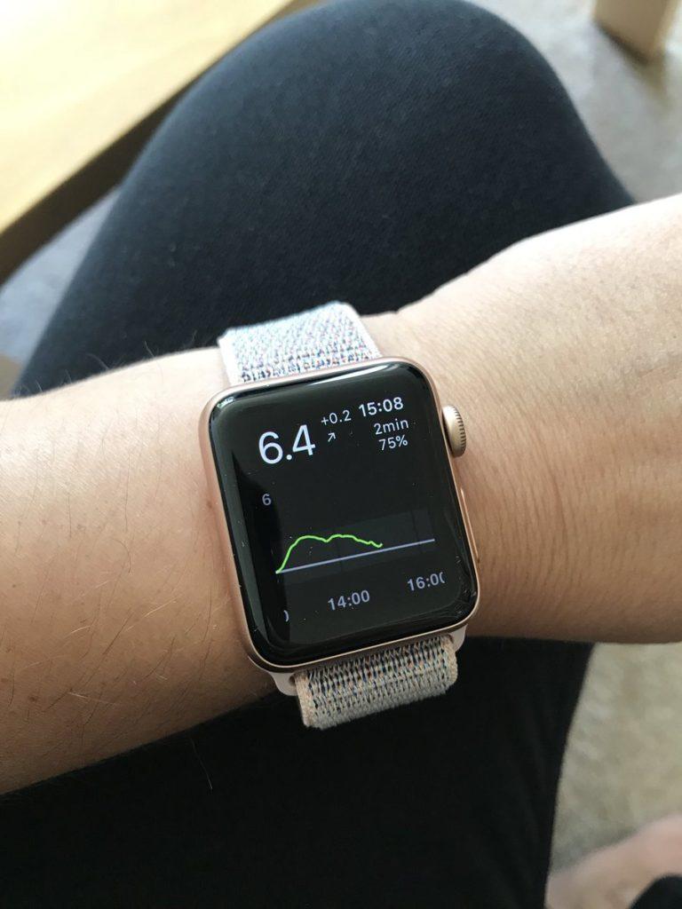 Apple Watch CGM